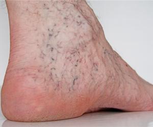 Ådernät på foten